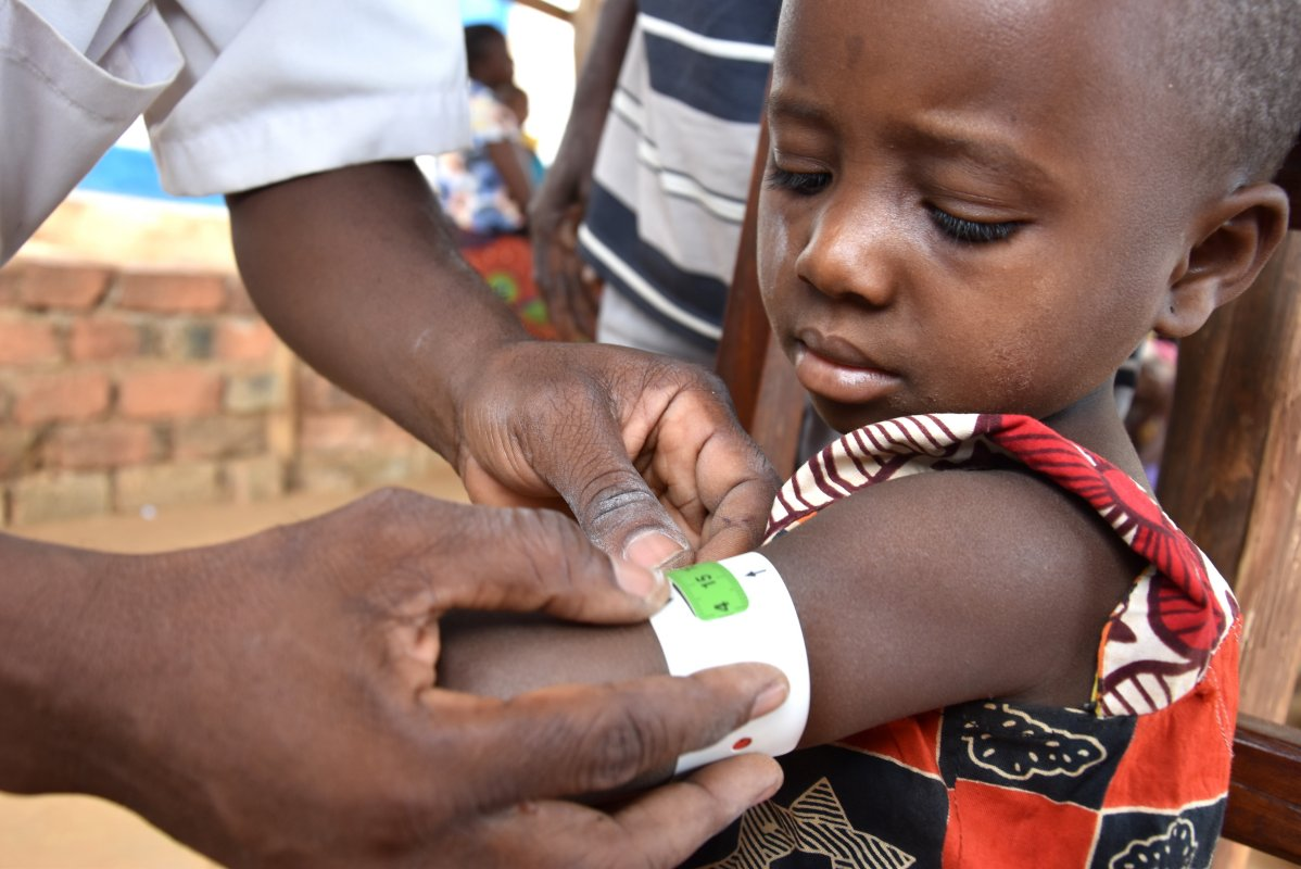 Combating acute child malnourishment